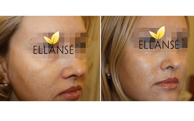 ellanse-before-after
